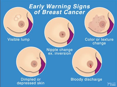 that breast Lumps cancer are